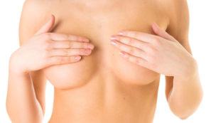 Field-testing Toplessness